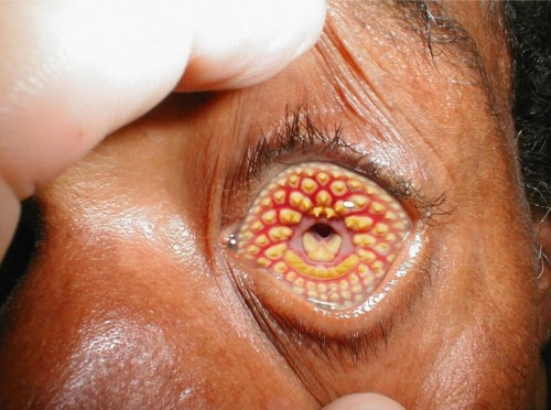 20 Of The Weirdest And Rarest Diseases Known To Mankind