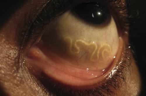 15 Creepy And Ingenious Parasites That Actually Exist