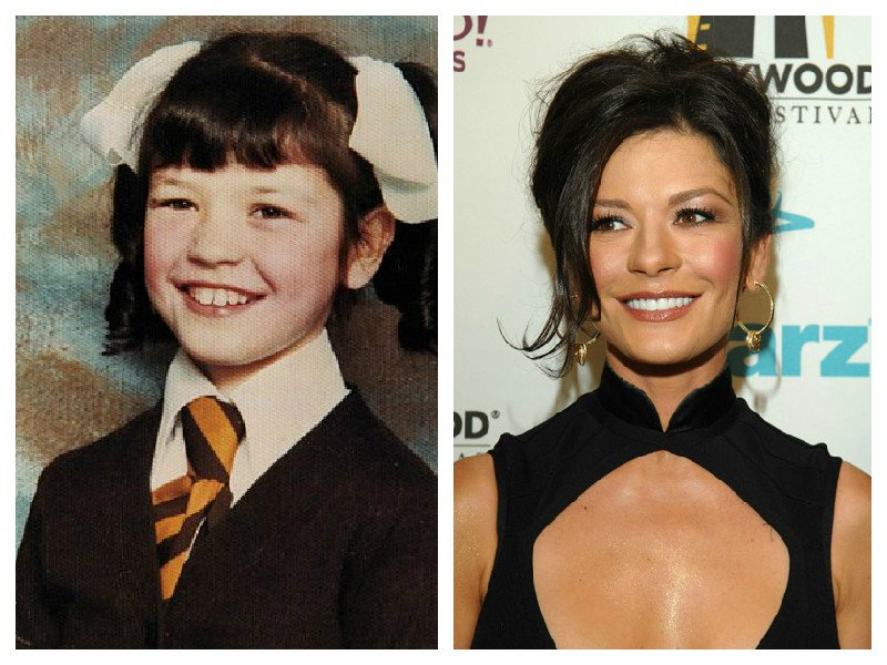 15 Hot Celebrities Who Grew Up As The Ugly Duckling-3960
