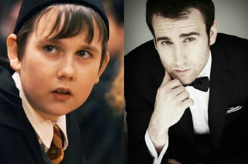 15 Hot Celebrities Who Grew Up As The Ugly Duckling