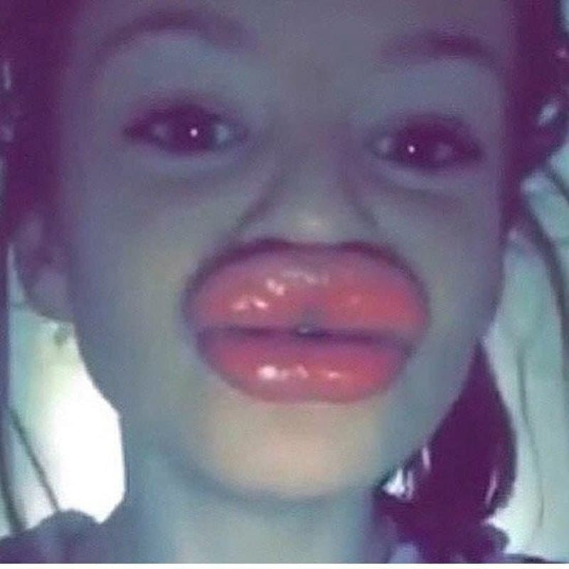 20 Reasons Why You Shouldn T Try The Kylie Jenner Lip