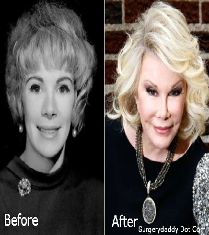 20 Of The Worst Celebrity Plastic Surgery Disasters