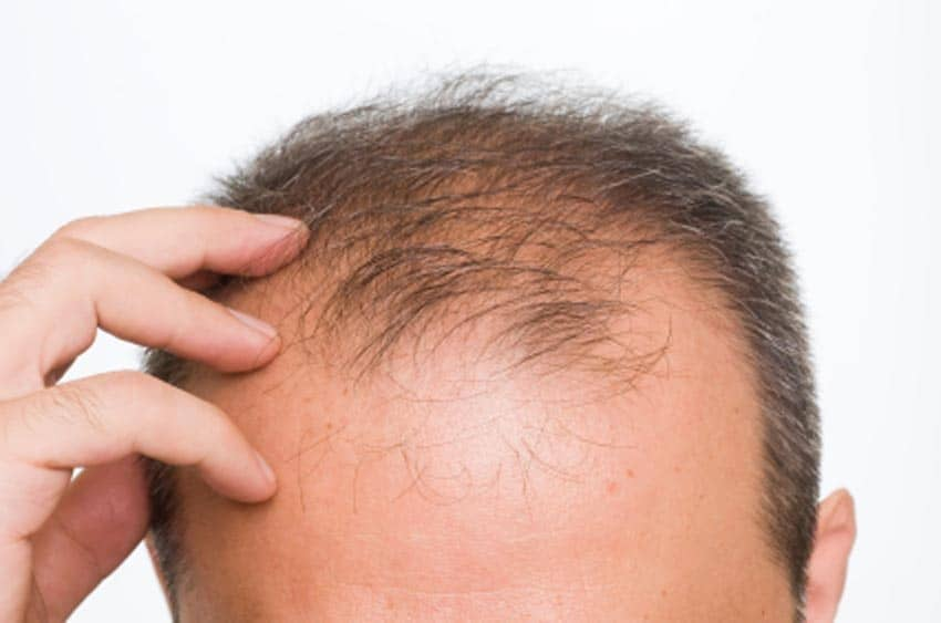 "Clever Hair Loss Remedy Uses Dietary Reversal Agents to ""Turn Back the Clock"" on Men's Hairlines"