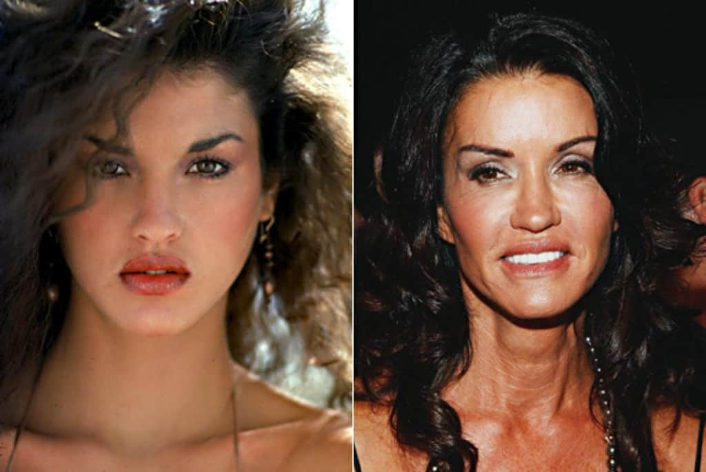 Plastic Surgeries Gone Wrong. Before and After Pics [20 ...