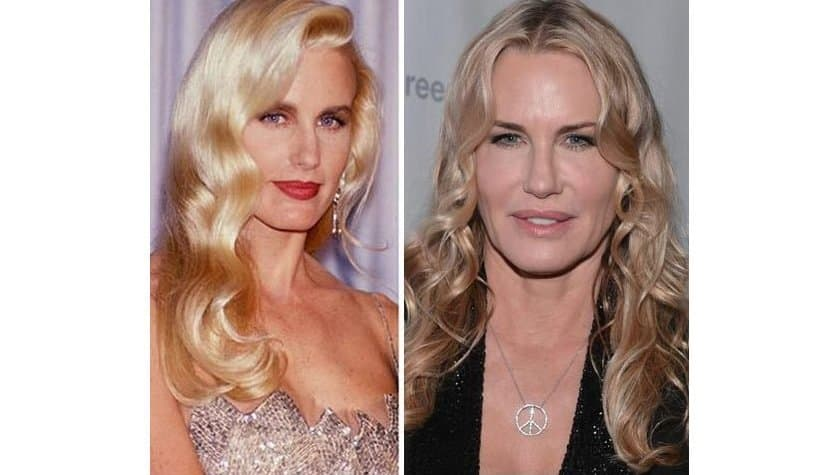 25 Plastic Surgeries Gone Wrong | Something to think about ...