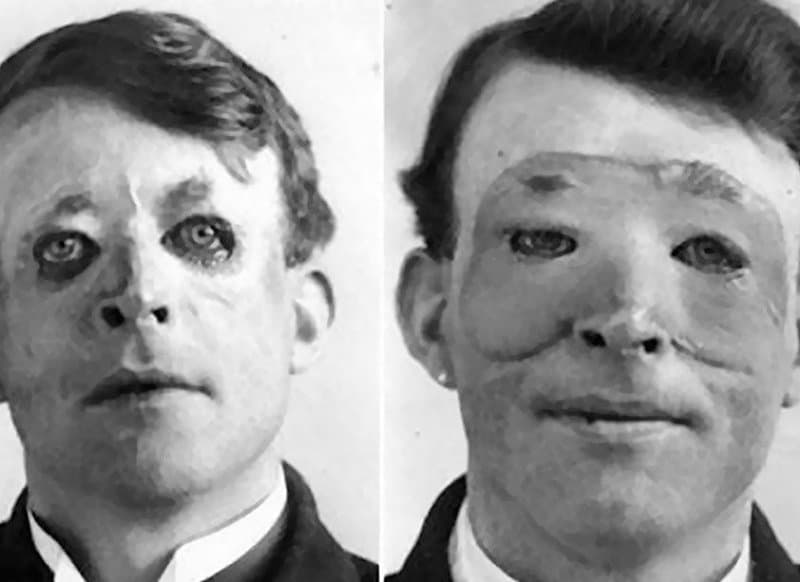 20 Rare And Horrifying Vintage Photos You Can't Unsee