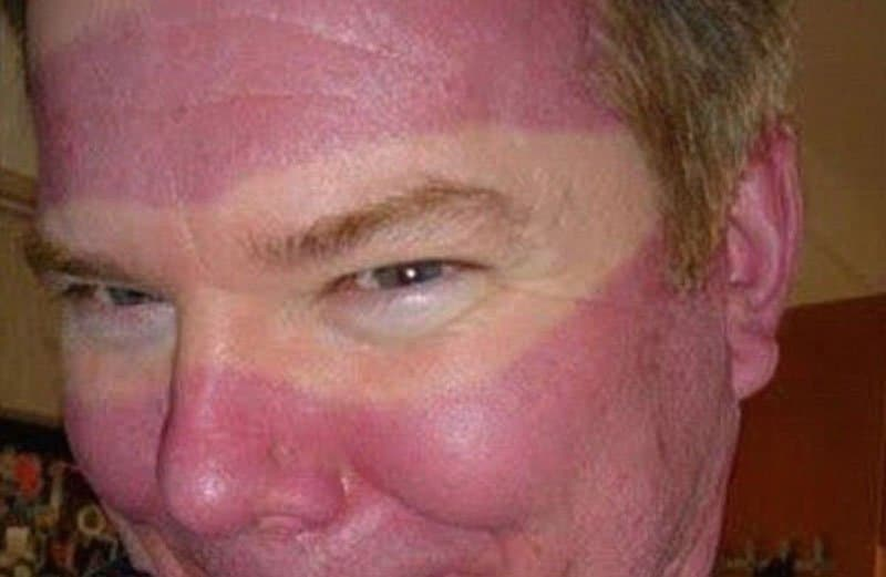 20 shocking tan lines you 39 ll have to see to believe - Brulure coup de soleil visage ...