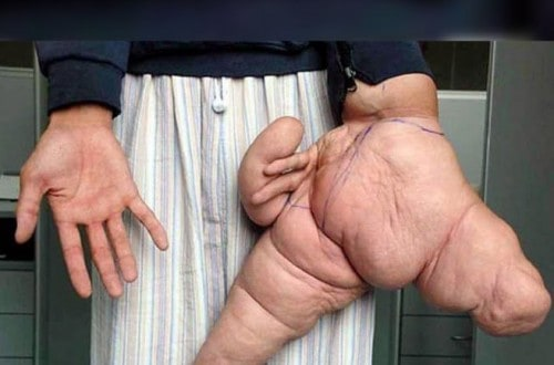 10 World Records Related To Incredible Body Parts