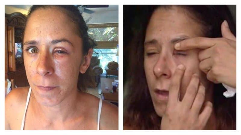 Woman Accidentally Super Glues Her Eye Shut