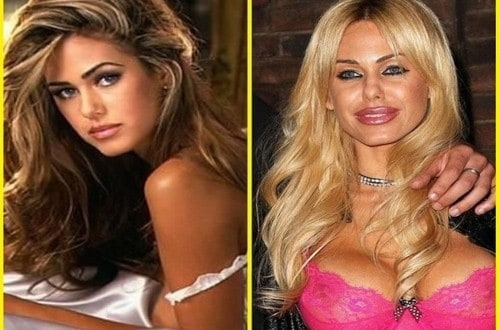 20 Celebrities Who Have Undergone Plastic Surgery