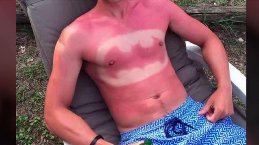 20 Ridiculous Examples Of Sunburn Art