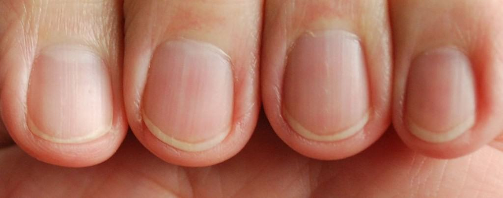 10 Things You Should Know About Your Fingernails